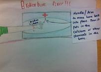 Brokenbone fixer